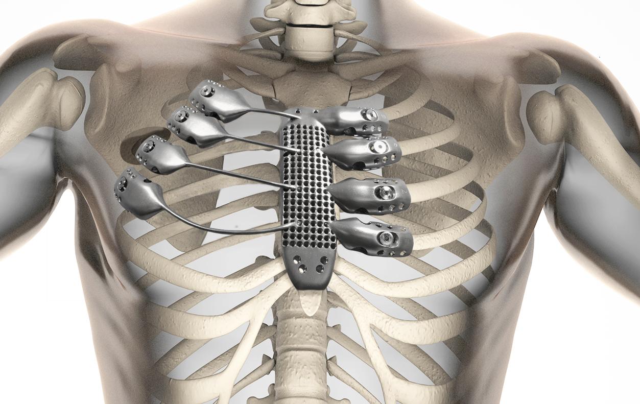 В Оренбурге медики имплантировали 3D орган